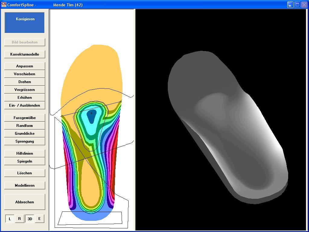 Individuelle, maßgenaue Einlagenfertigung per 3D Scanner