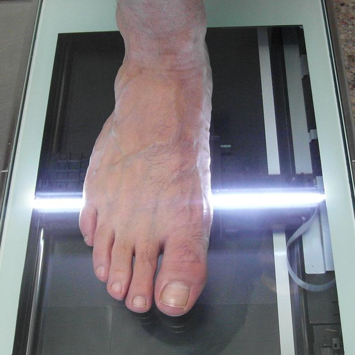 Fußscan